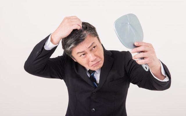 AGA男性型脱毛症の外用薬治療の薬にはどんなものがあるか?