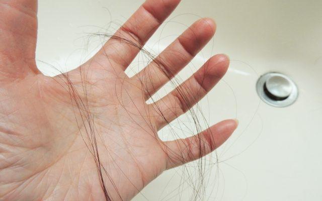 AGA男性型脱毛症の抜け毛の量は、若ハゲ薄毛に対する悩みに比例する