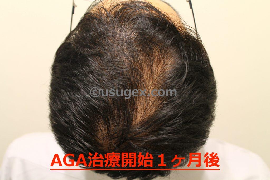 AGA治療開始1ヶ月後
