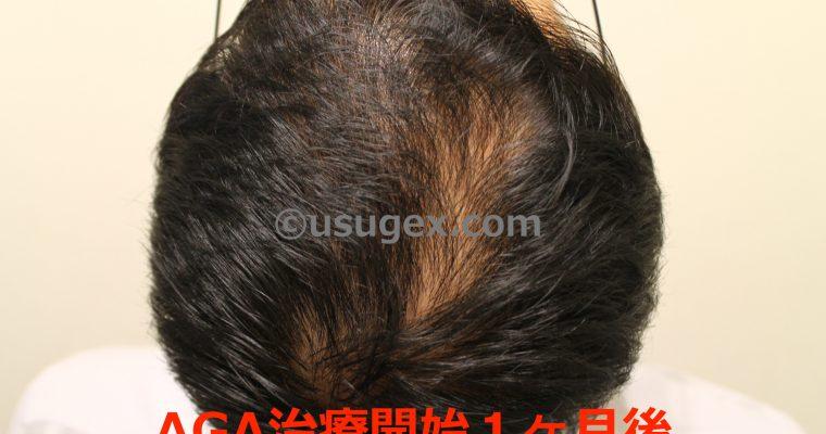 1ヶ月経過|AGAの薄毛治療を受けてみた!30代若ハゲ体験談