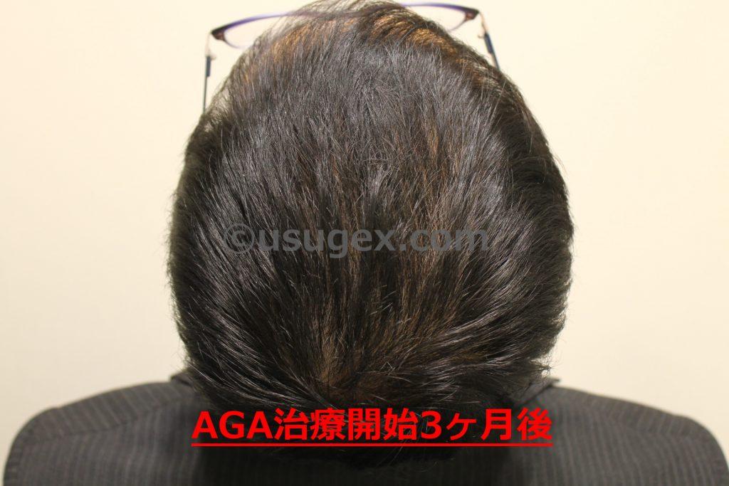 AGA治療開始3ヶ月後