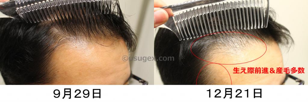 AGA治療ひたいの産毛
