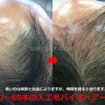 医師解説「自毛植毛 人工毛植毛 バイオヘア」違いとメリットデメリット