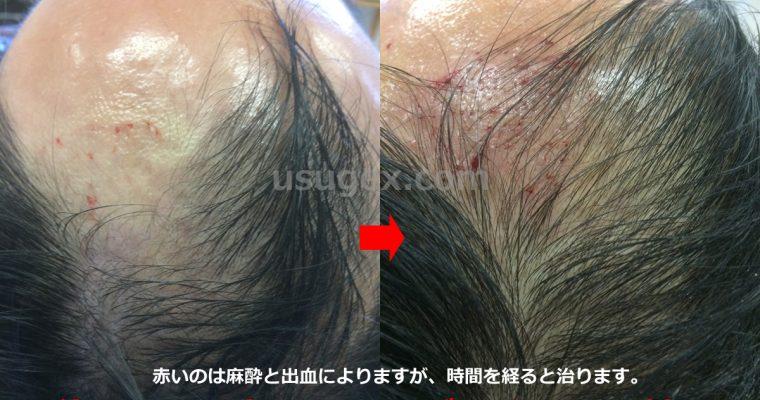 薄毛治療の自毛植毛・人工毛植毛・バイオヘアについて医師が解説