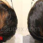 5ヶ月経過|髪の毛の回復を完璧に実感!銀クリAGA薄毛治療体験談