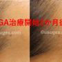 2ヶ月経過| 早速効果が!?30代若ハゲ「銀クリAGA」薄毛治療体験談
